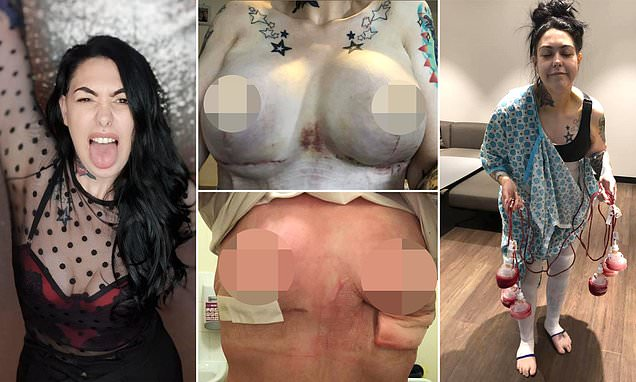 Pictures of flat chested women